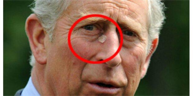 Prinz Charles ließ sich an der Nase operieren