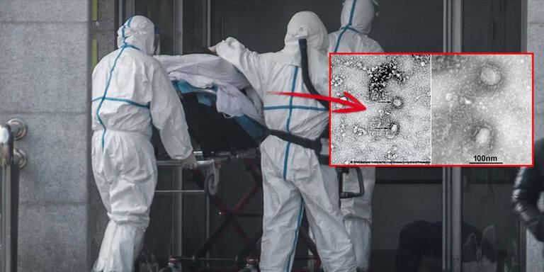 Bildergebnis für coronavirus wien