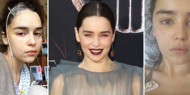 Emilia Clarke GoT