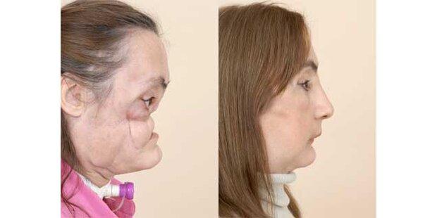 46-Jährige bekam neues Gesicht