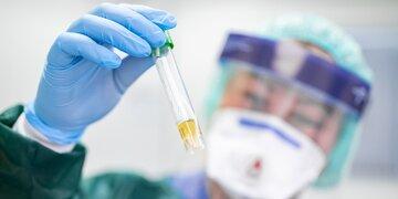 Coronavirus: Test soll Immunität nachweisen