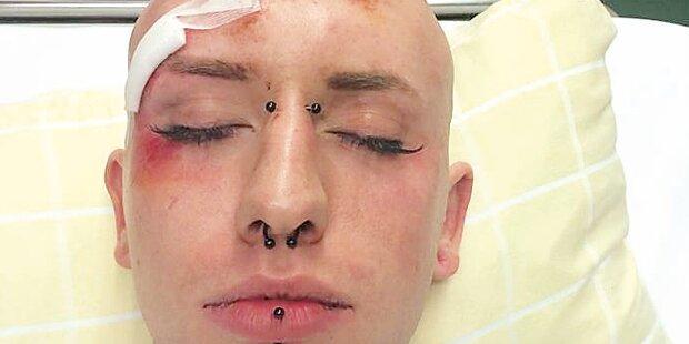 Prügel-Attacke auf Travestie-Künstler