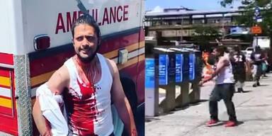 Mann spaziert mit Messer im Kopf blutüberströmt durch die Stadt