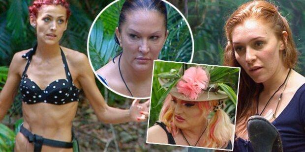 Beauty-OP-Beichte im Dschungelcamp
