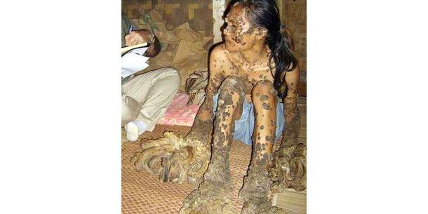 """""""Baum-Mann"""" von Jakarta darf nicht zu OP ausreisen"""