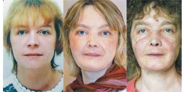 Gesichtstransplantierte kann wieder lachen