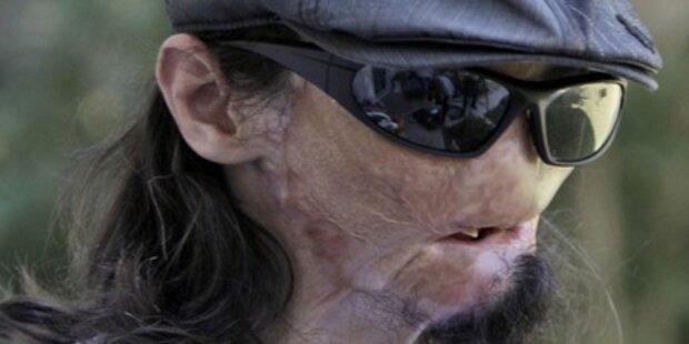 Komplett neues Gesicht transplantiert