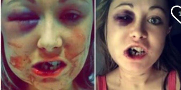 Keine Lust auf Sex: Mann verprügelt seine Freundin
