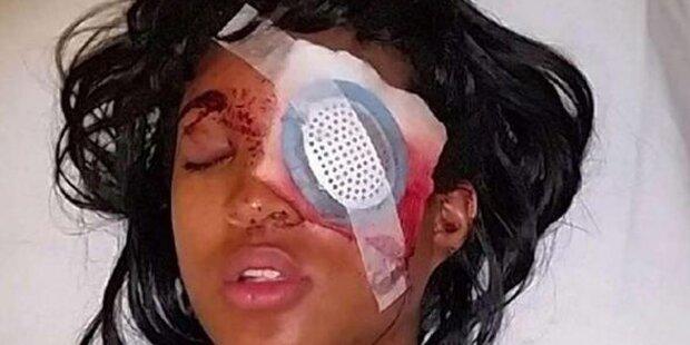 Polizei schießt Frau ein Auge weg
