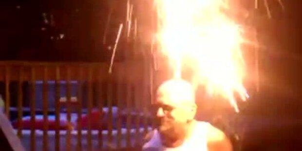 Mann entzündet Feuerwerk auf seinem Kopf