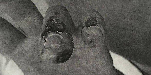 Fieser Säure-Angriff auf Wiener Sanitäter