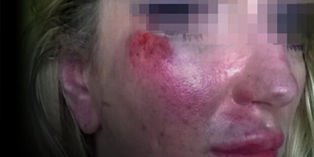 Frau brutal verprügelt