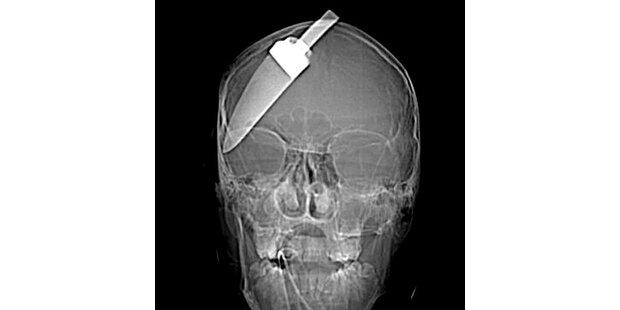 Diebe rammten Teenager Messer in den Kopf