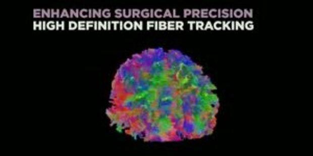 Das ist der neue Blick direkt ins Gehirn