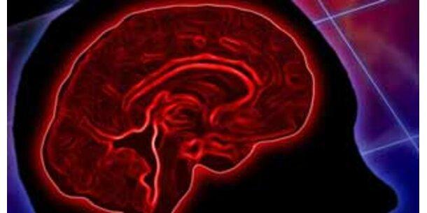 Wenn Alzheimer die Gehirnfunktion stört