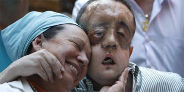 Erste Gesichts-Transplantation geglückt