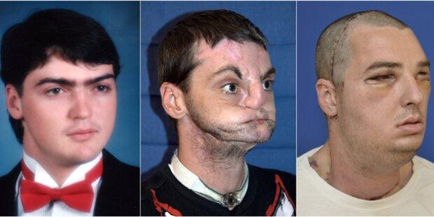 Mann bekam neues Gesicht, Kiefer und Zunge