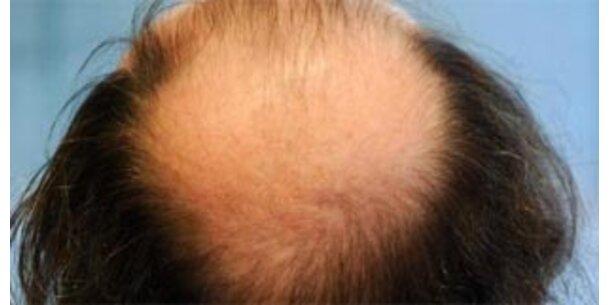 Forscher finden Gen für Haarwuchs