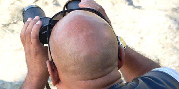 Frühe Glatze erhöht Krebs-Risiko