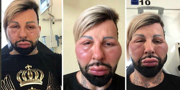Glööckler im Spital: Allergie-Schock