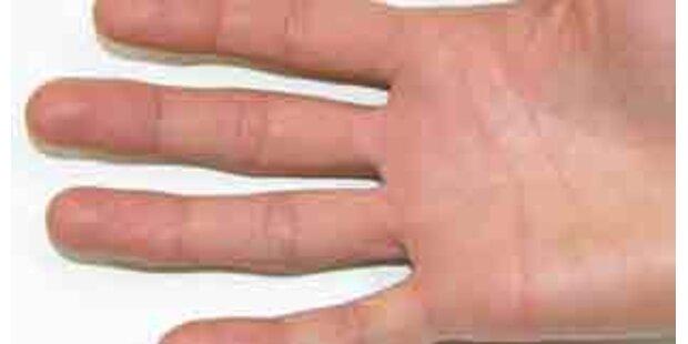 Vier abgetrennte Finger wurden wieder angenäht