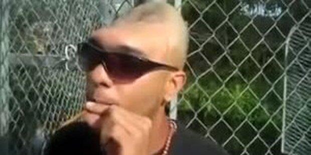 Mann mit halbem Kopf warnt: Keine Drogen!