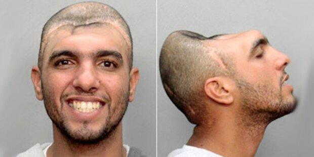 Darum hat Carlos nur noch halben Kopf