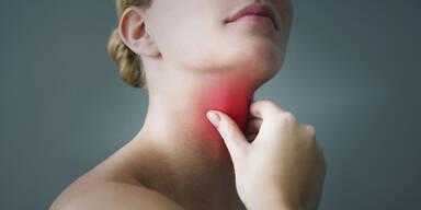 Mit diesen Tipps haben Halsschmerzen keine Chance