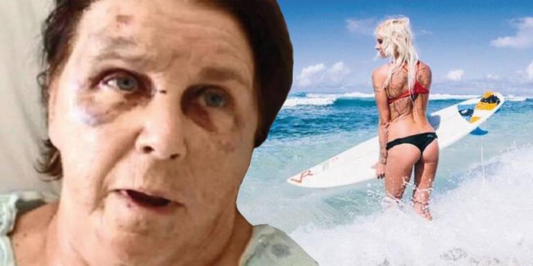 Jetzt spricht das Opfer der sexy Surferin