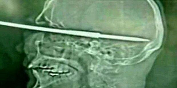 Fischer schießt sich Harpune in den Kopf