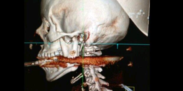 Frau überlebt Harpunen- Schuss in den Kopf