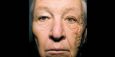 Sonnenschäden auf Gesicht