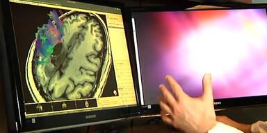 HDFT Gehirn