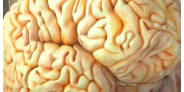 US-Forscher blicken per Scanner ins Gehirn