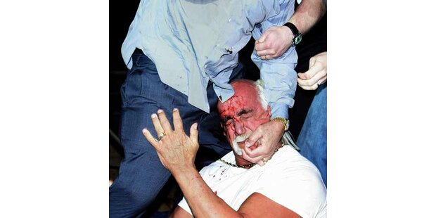 Hulk Hogan blutig geschlagen