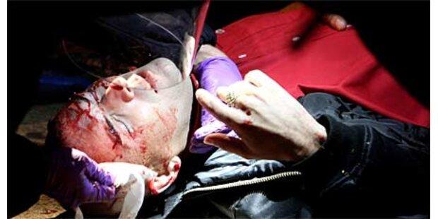 Hooligan-Krieg: Mann niedergestochen