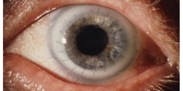 Künstliche Hornhaut schützt vor Erblindung