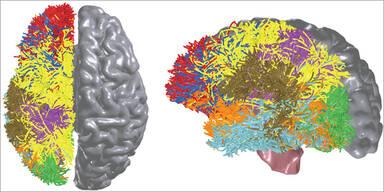 Neuer Chip-Prototyp ahmt menschliches Gehirn nach