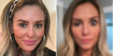 Gruselig! Influencerin zeigt Mega-Botox-Fail