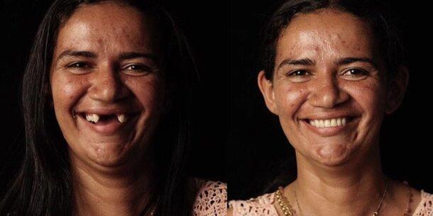 Dieser Zahnarzt schenkt armen Menschen ein neues Lächeln - oe24.at