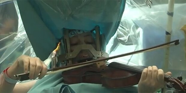 Frau spielte während Hirn-OP Geige