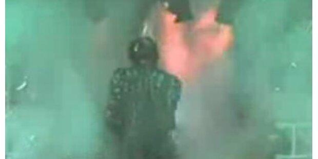 Video von Jacksons Verbrennungsunfall