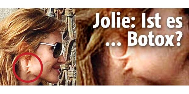 Botox-Alarm bei Miss Jolie