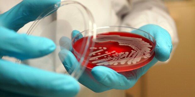 Parasiten haben zusammengewürfeltes Erbgut