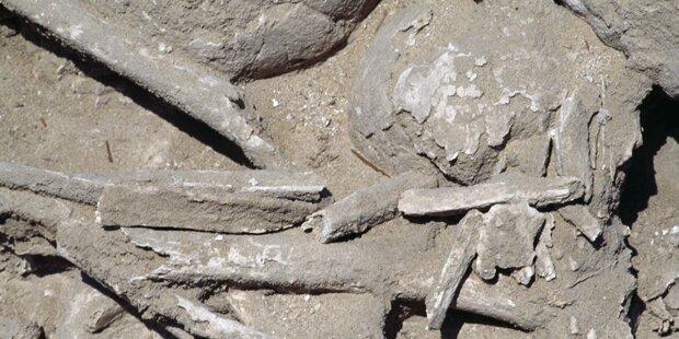 Tumor in zwei Mio. Jahren alten Knochen entdeckt
