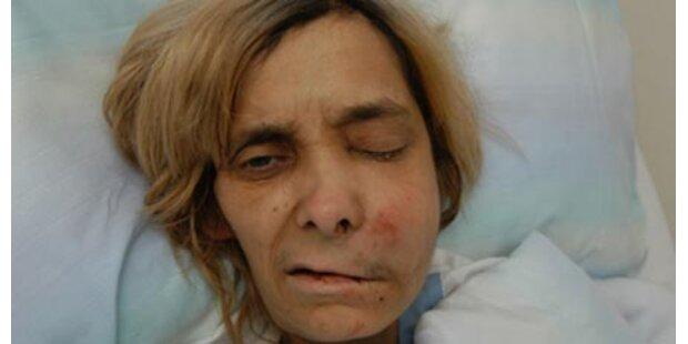 Vor Spital ausgesetzte Frau gestorben