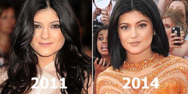 Kylie Jenner (16): War sie beim Beauty-Doc?