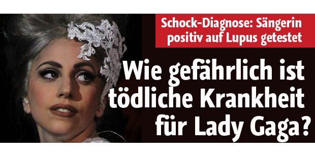 Lady Gaga positiv auf Lupus getestet