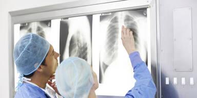 Lungenkrebs wird größtes Krebsproblem