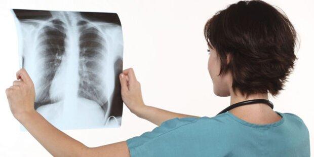 Lungenkrebs bleibt katastrophale Erkrankung
